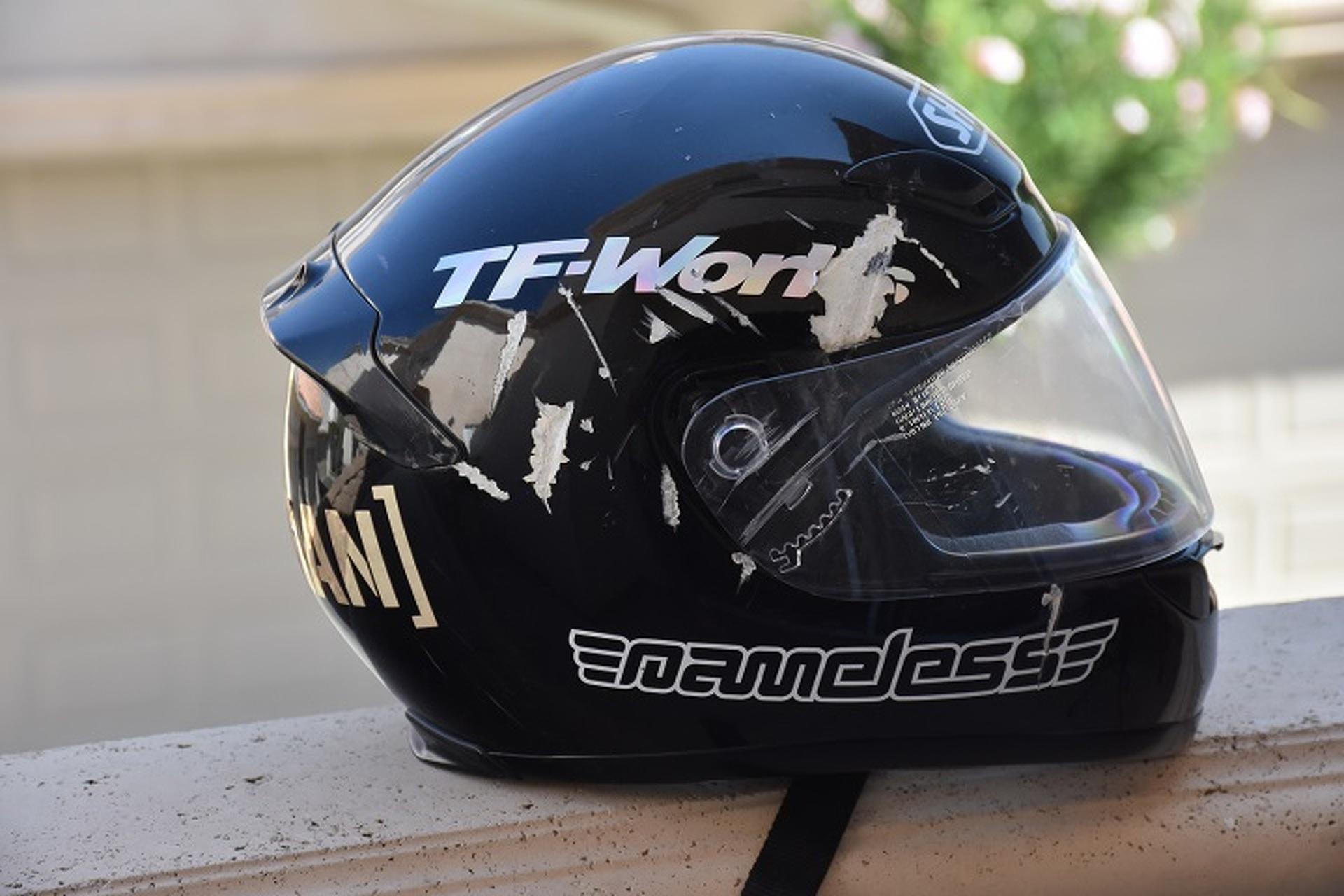 I'm Still Here Because of My Helmet